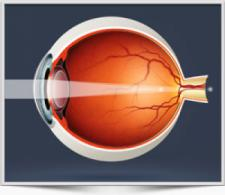 Astigmatism and Laser Eye Surgery