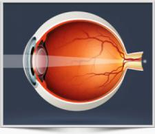 Hyperopia - Longsightedness