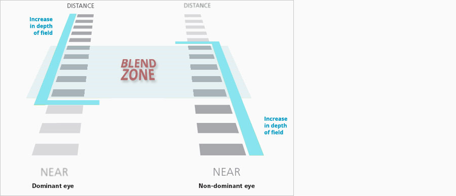 Laser Blended Vision Explained